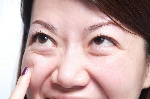 上海祛眼袋大概要多少钱以及效果如何