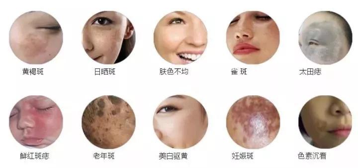 上海美莱超皮秒_新一代美肤神器,美肤更祛斑!