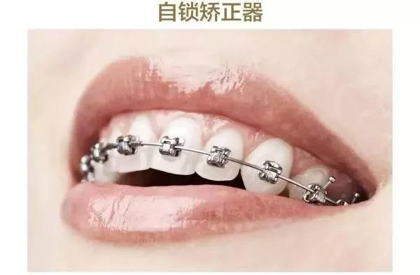 上海美莱牙齿矫正_说个拜拜都是爱你的形状!