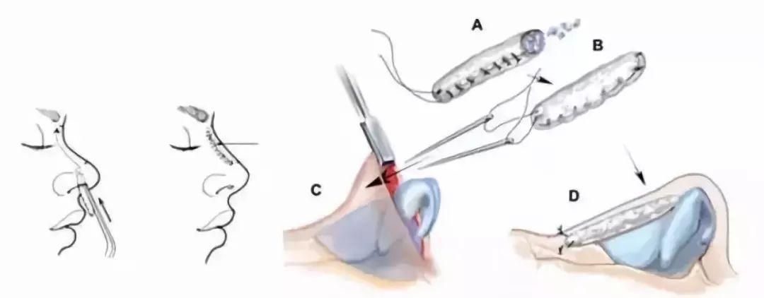上海肋软骨隆鼻的手术方法,了解一下!
