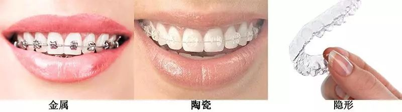 上海医院牙齿矫正需要多长时间