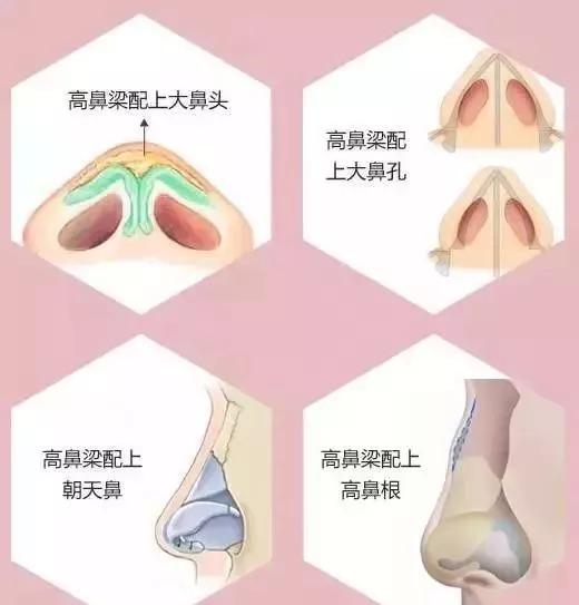 什么才是真正的综合鼻整形,哪种材料适合我