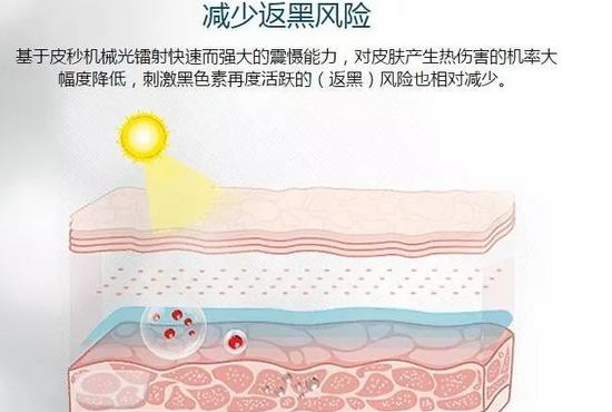 上海美莱皮秒祛斑有什么优势呢