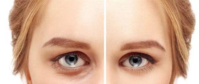 看看就知道手机对眼袋的影响有多大