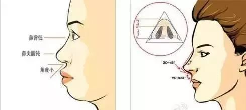 上海隆鼻的样式都有哪些