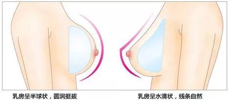 上海美莱丰胸整形效果自然吗