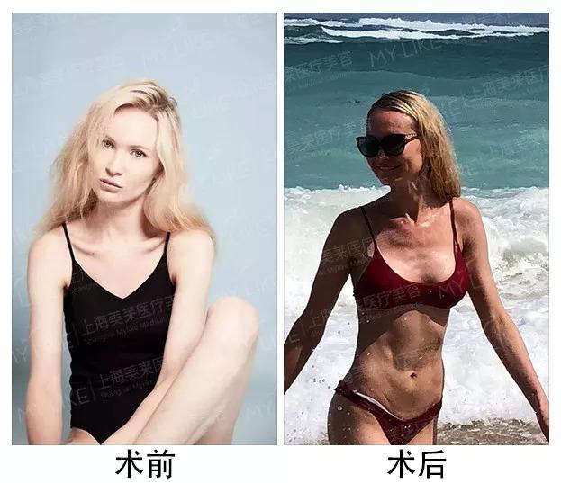 上海美莱案例