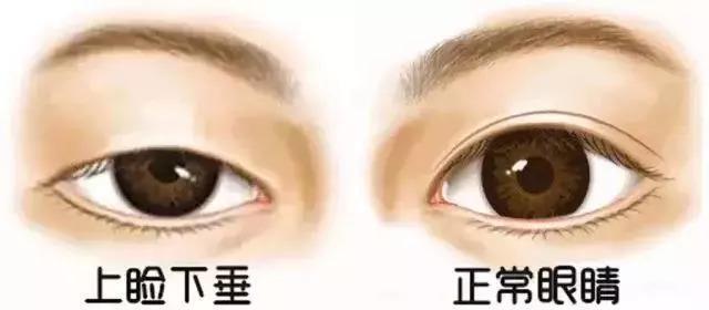 上海美莱|到底哪种眼睛割了双眼皮好看