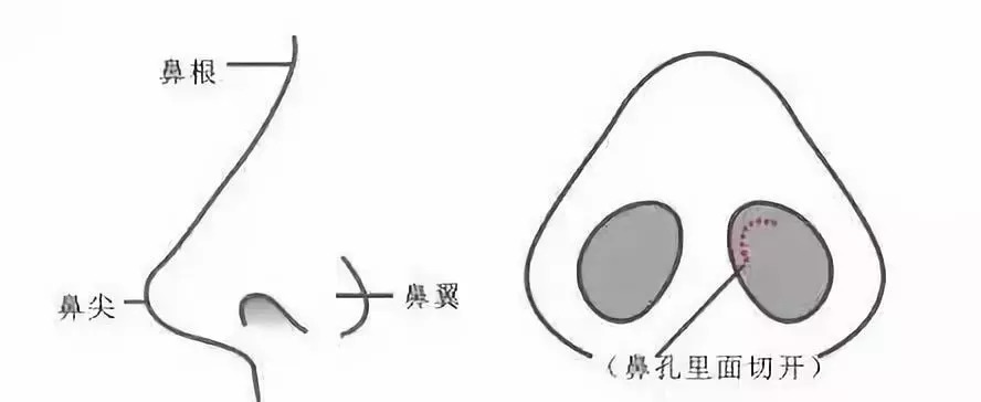 上海美莱隆鼻,塑造三位一体全方位立体美鼻!