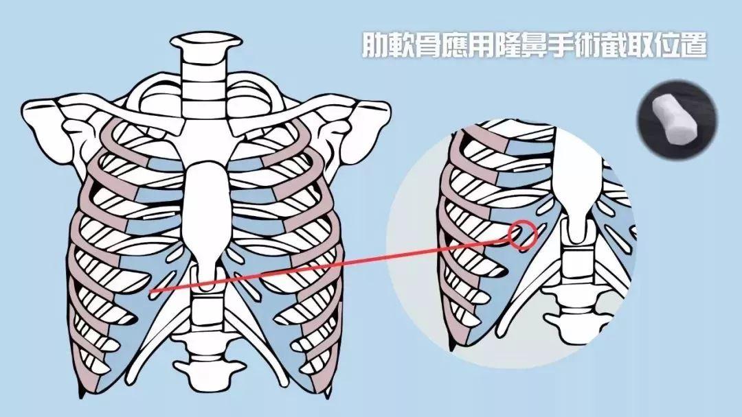 上海美莱肋软骨隆鼻整形手术的优势