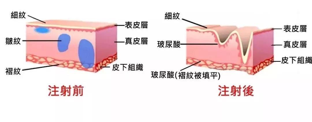 上海美莱线雕+玻尿酸威力有多大?年轻二十岁不是梦!