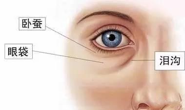 外切祛眼袋有危险吗?上海美莱杜园园为你解答