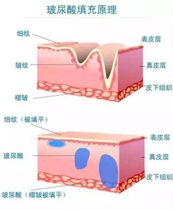 玻尿酸注射填充吸收快不快?上海美莱微整形主任肖玮解答