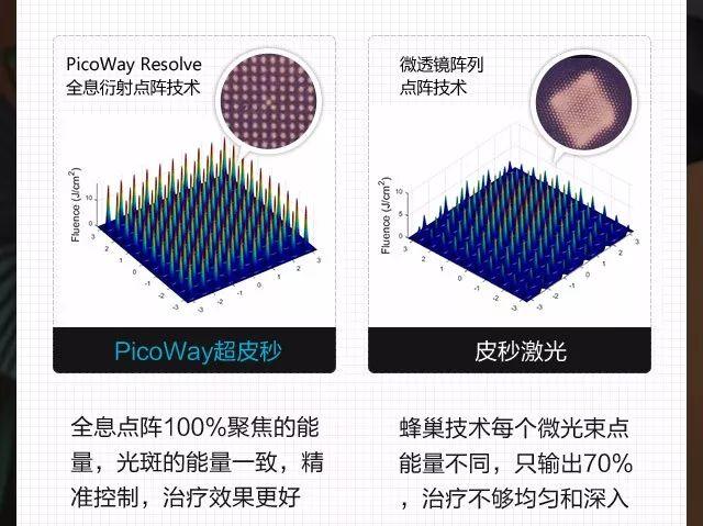 上海美莱超皮秒,祛斑嫩肤界的TOP1