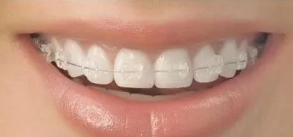 上海做牙齿矫正一般要多少钱