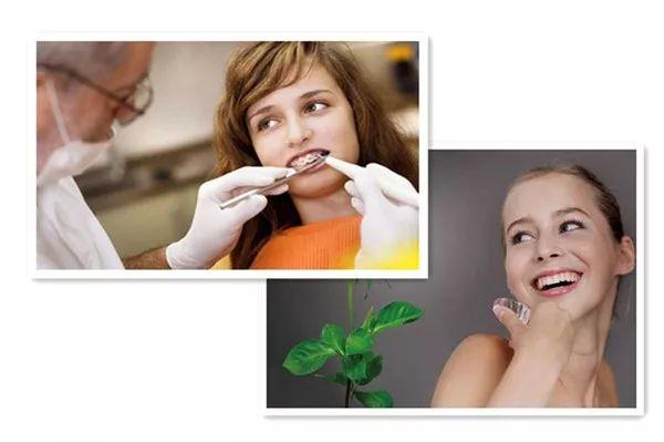 美莱矫正牙齿隐形牙套要多少钱