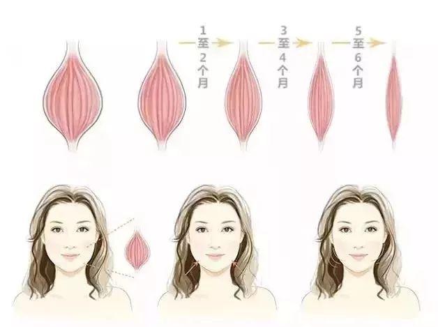 上海美莱瘦脸针|轻松一针,就能拥有上镜小V脸!