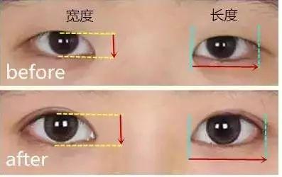 为什么双眼皮不宜做的太宽?美莱杜医生教授为你解答