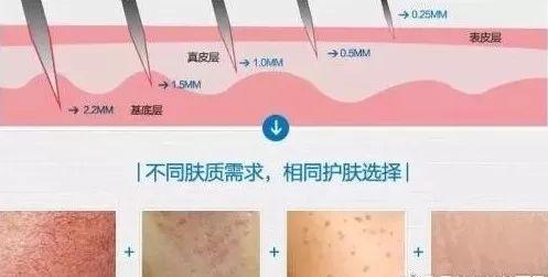 上海美莱伊肤泉微针,长久维持皮肤年轻状态!
