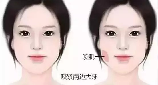 上海美莱瘦脸针|让你尊享悄然而来的精致面孔!