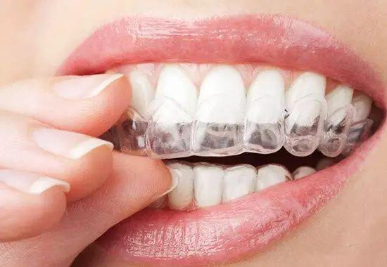 上海效果最好,速度最快的牙齿矫正方法是哪一种?