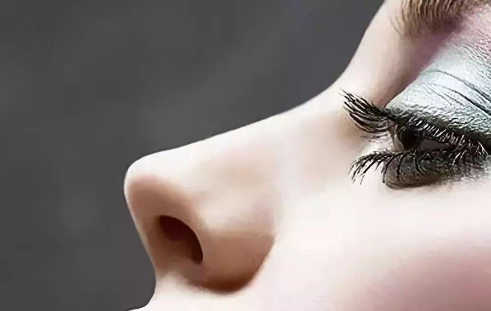 鼻子假体取出鼻子会变形吗?上海美莱医生为你解答