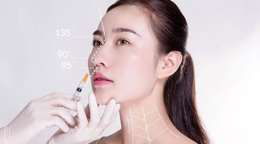 上海医院做鼻部综合整形手术安全吗
