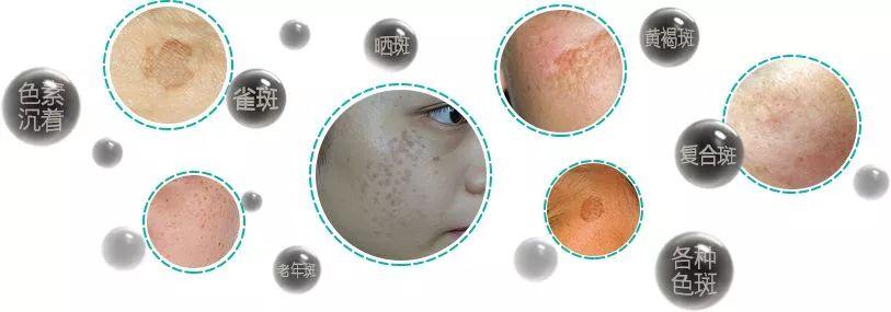 上海美莱激光祛斑|光学击穿皮肤而不损伤表皮!