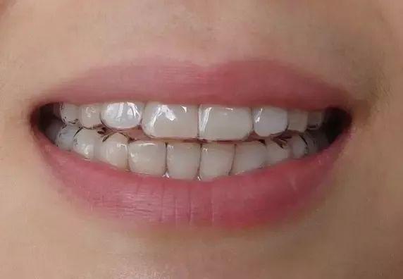 上海做牙齿隐形矫正价格会是多少