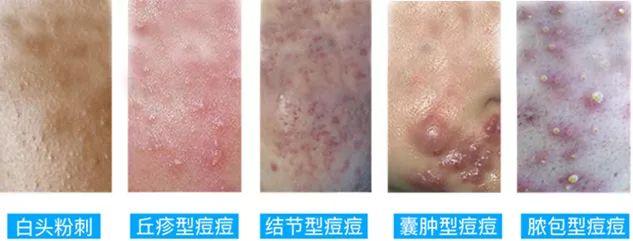 上海美莱做祛痘多少钱一个疗程