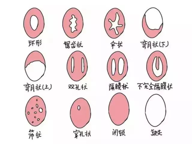 上海处女膜修复哪家医院做的好
