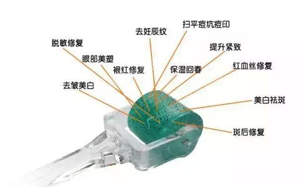 上海痘坑痘洞修复哪家医院效果比较好