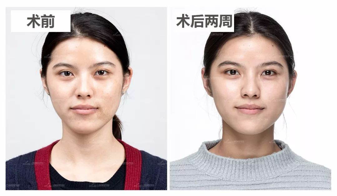 上海美莱双皮秒祛斑案例