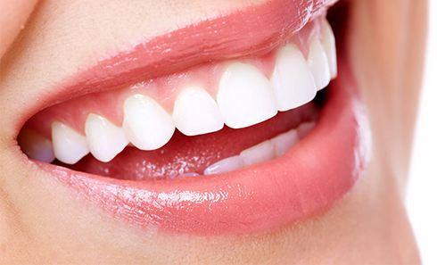 美莱做钢丝矫正牙齿多少钱