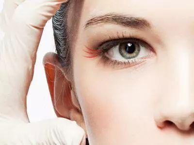 上海失败双眼皮修复美莱效果怎么样