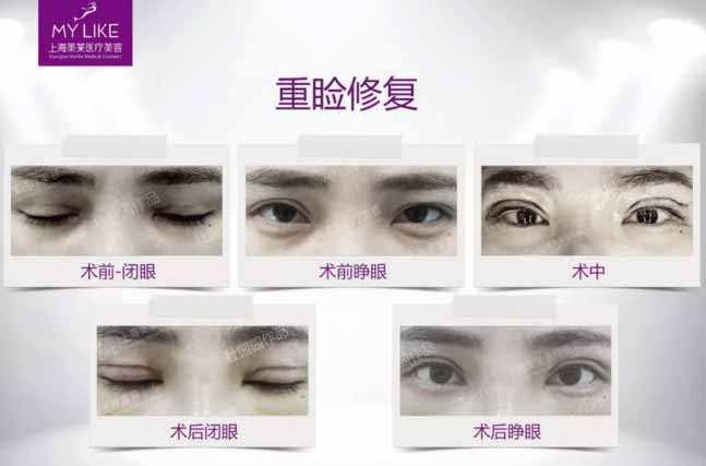 上海美莱双眼皮失败修复案例