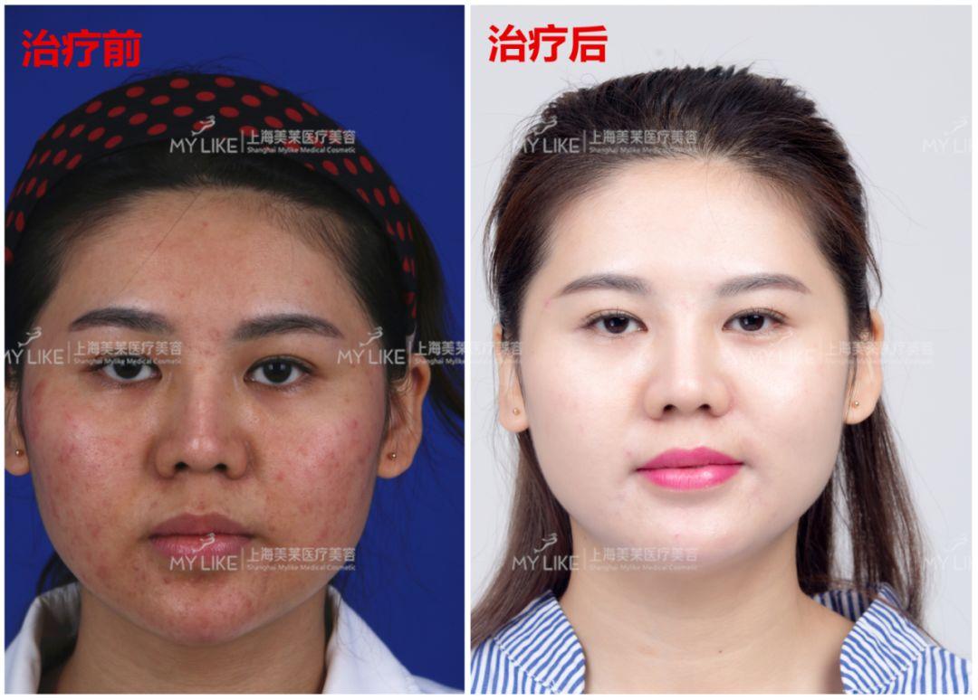 上海美莱微针祛痘案例