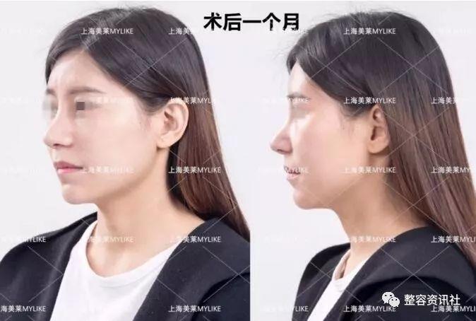 上海美莱假体隆鼻案例