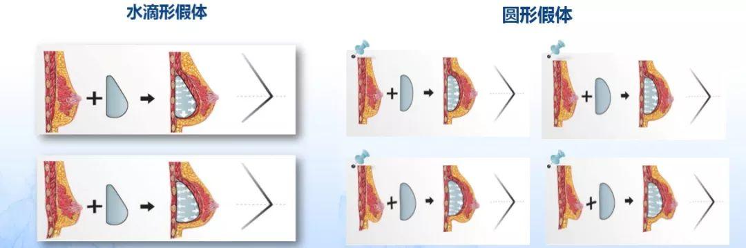 假体隆胸上海美莱效果真实可靠吗