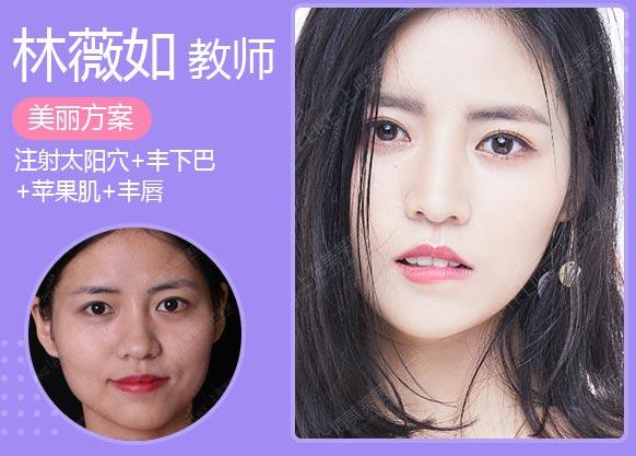 上海美莱乔雅登玻尿酸案例