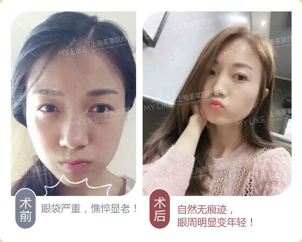 上海美莱祛眼袋案例|案例