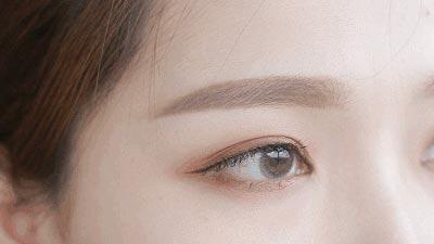 上海美莱割双眼皮