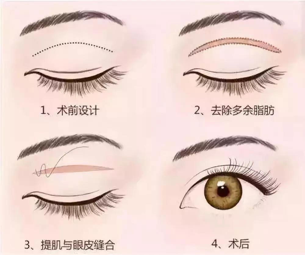 上海美莱全切双眼皮