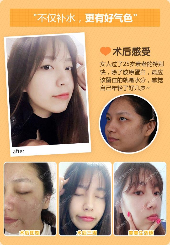 上海注射水光针案例