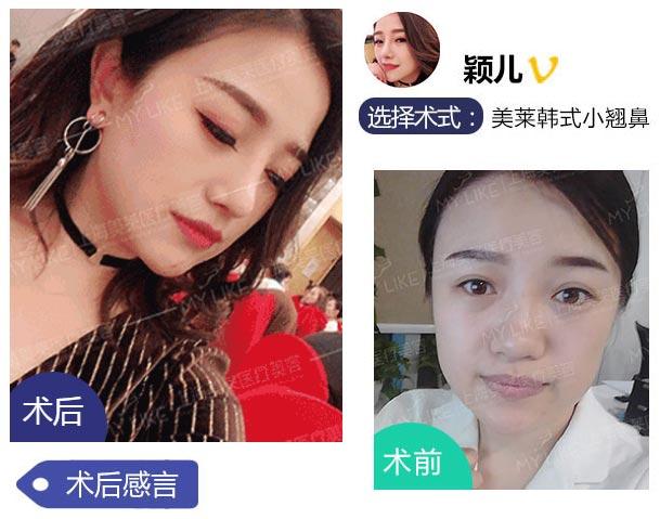 上海美莱肋软骨隆鼻案例