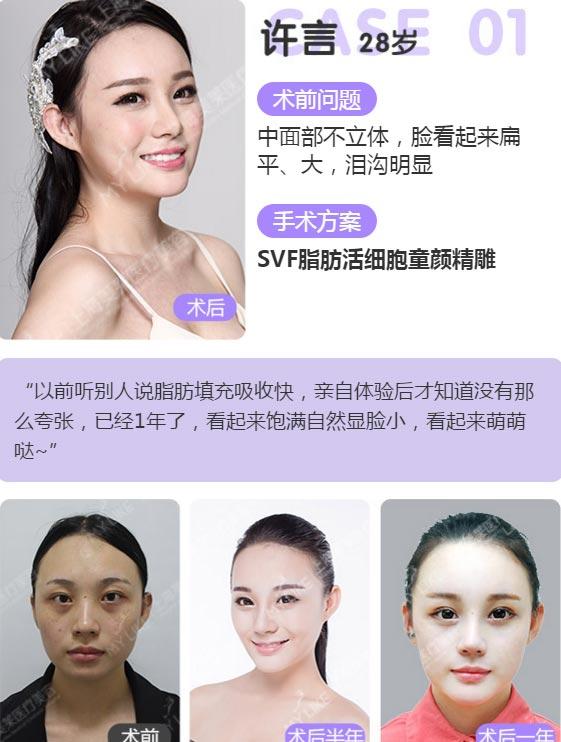 上海美莱SVF脂肪活细胞童颜精雕案例