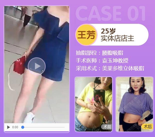 上海美莱极速精雕吸脂术案例