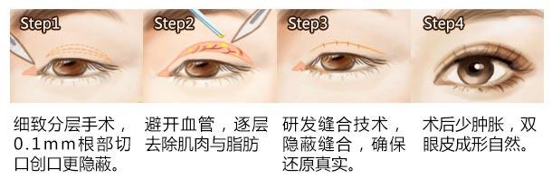 做双眼皮上海美莱急速纳米美眼效果好不好