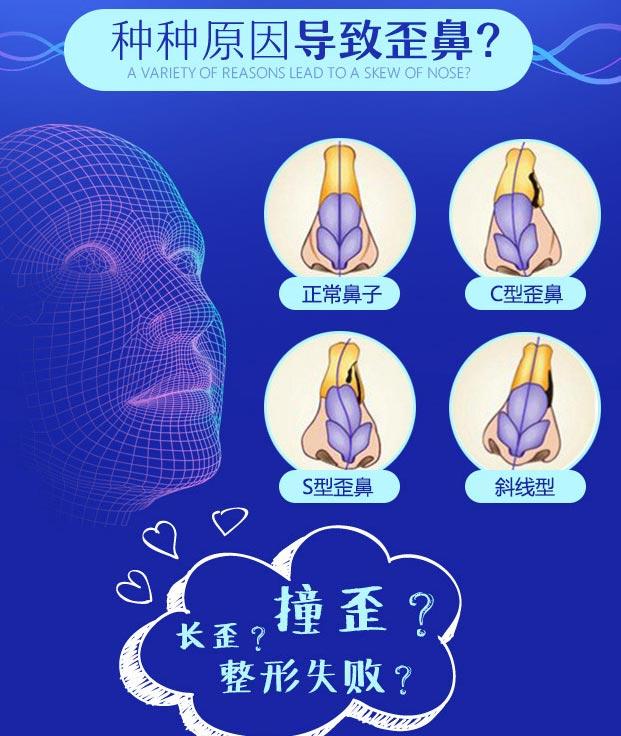 上海隆鼻手术歪鼻矫正美莱好不好