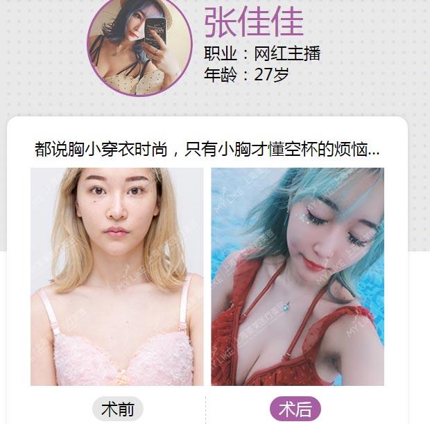 上海美莱假体丰胸案例